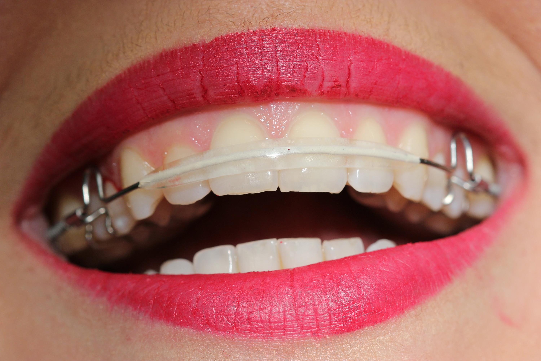 inman aligner, ravnanje zuba, ispravljanje zuba, ortodoncija, aparatić za odrasle, ordinacija sanja vuić, zagreb