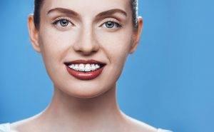 žena s estetskim aparatićem six month smiles s bijelim bravicama