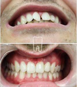 frenulektomija, frenulum, razmak između zuba, dijastema, ordinacija sanja vuić, zagreb