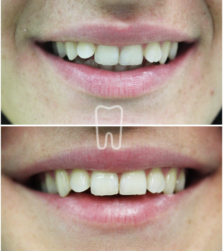 Ispravljanje zuba Inman Alignerom u Ordinaciji Vuić, slučaj prije i poslije