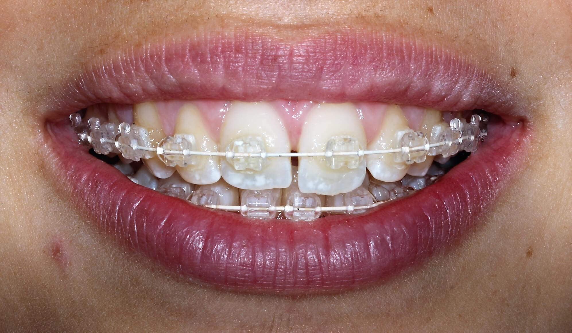 six month smiles, ortodoncija, ispravljanje zuba, estetski aparatić, ravnanje zuba, ordinacija sanja vuić, zagreb