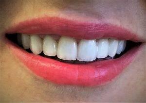 Osmijeh pacijentice s keramičkim krunama i mostovima izrađenim u Ordinaciji Vuić