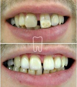 Ljuskice za zube