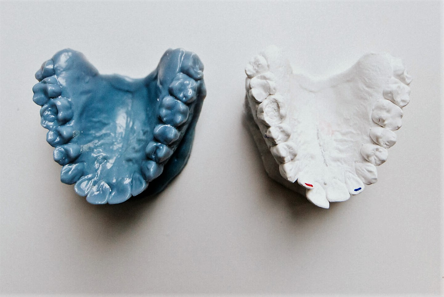 ortodoncija, myobrace, ordinacija sanja vuić, zagreb