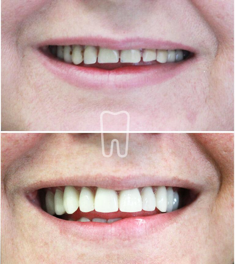 Ordinacija Sanja Vuic - Zubne proteze 2