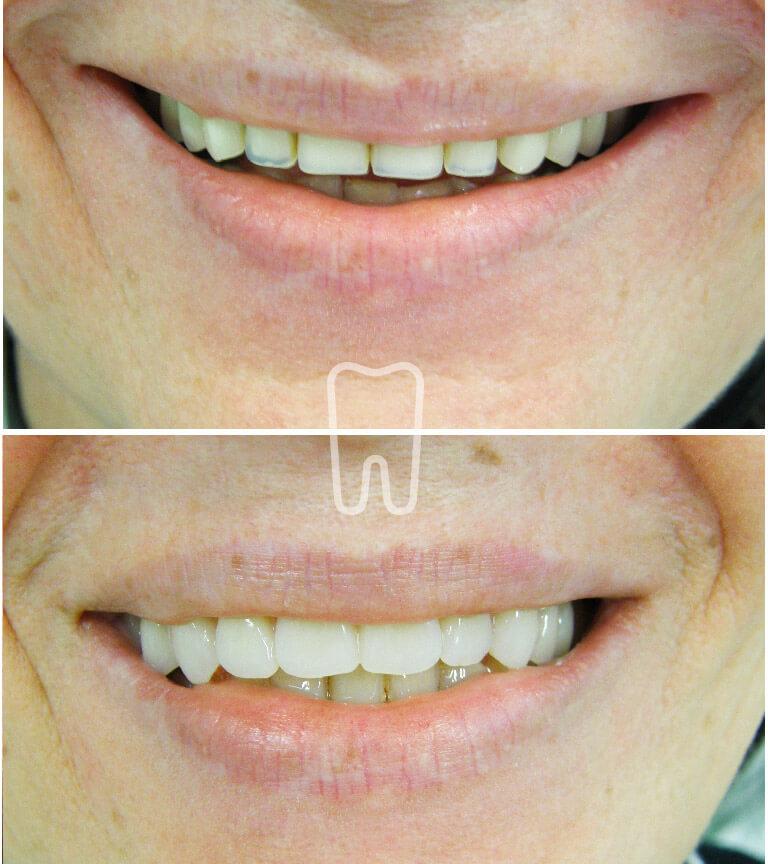 Ordinacija Sanja Vuic - Zubne proteze 3