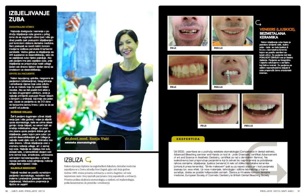 ordinacija sanja vuić, zagreb, izbjeljivanje zuba, bijeli zubi, anti-age, estetika