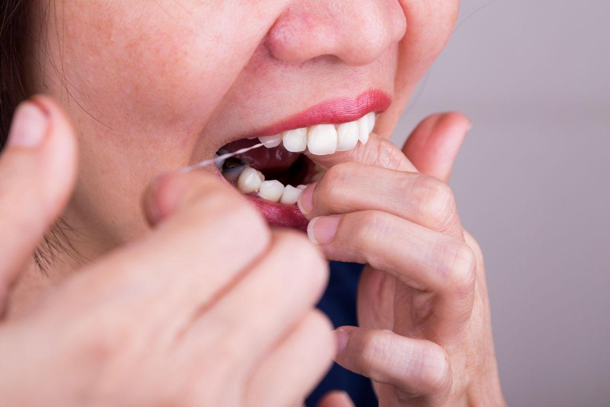 zubni konac, ciscenje zubi, odrzavanje higijene, stomatoloska ordinacija Vuic, Zagreb