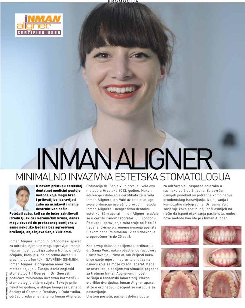 inman aligner, ravnanje zuba, ortodoncija, estetika, aparatić za odrasle, ordinacija sanja vuić, zagreb