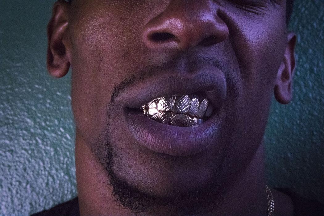 grillz nakit za zube