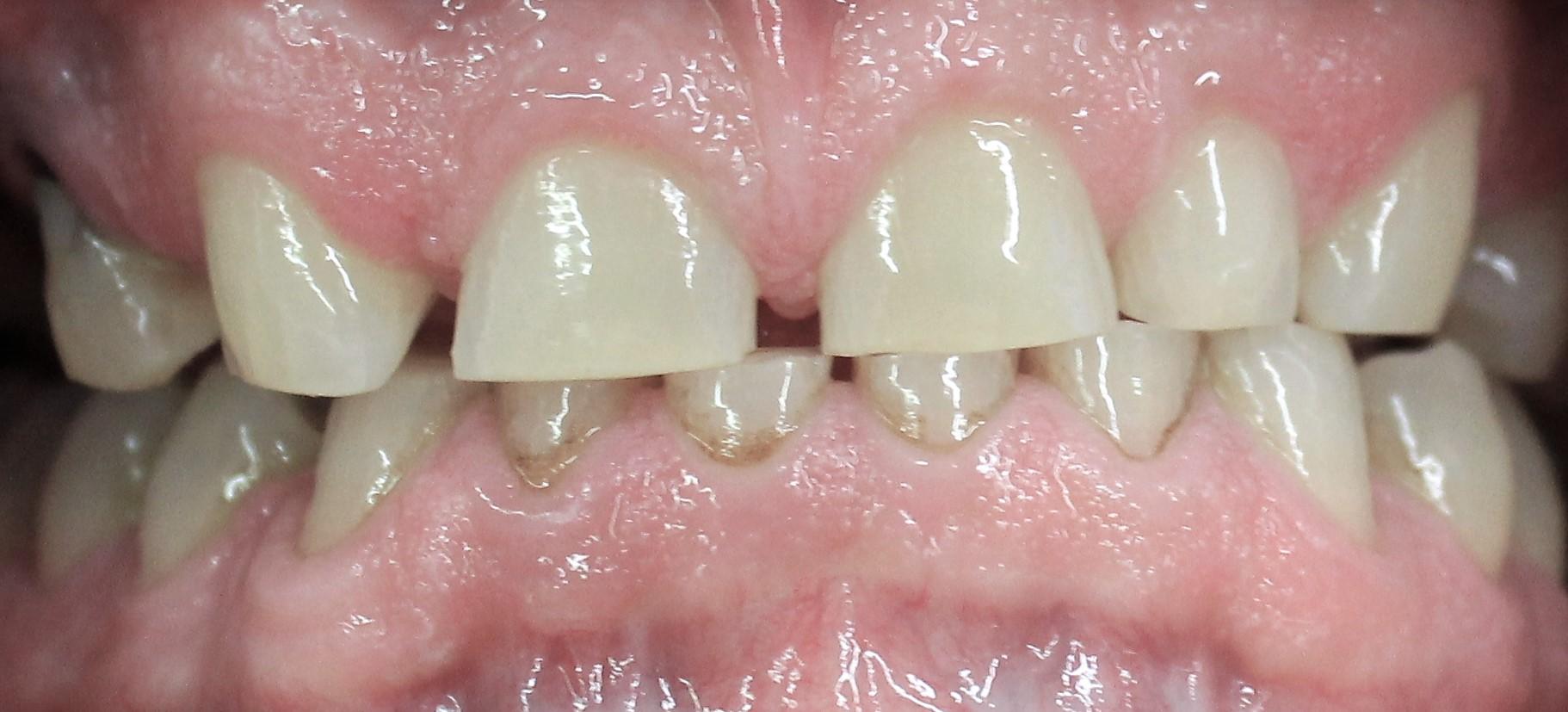 Zubi potrošeni uslijed bruksizma - noćnog škripanja zubima