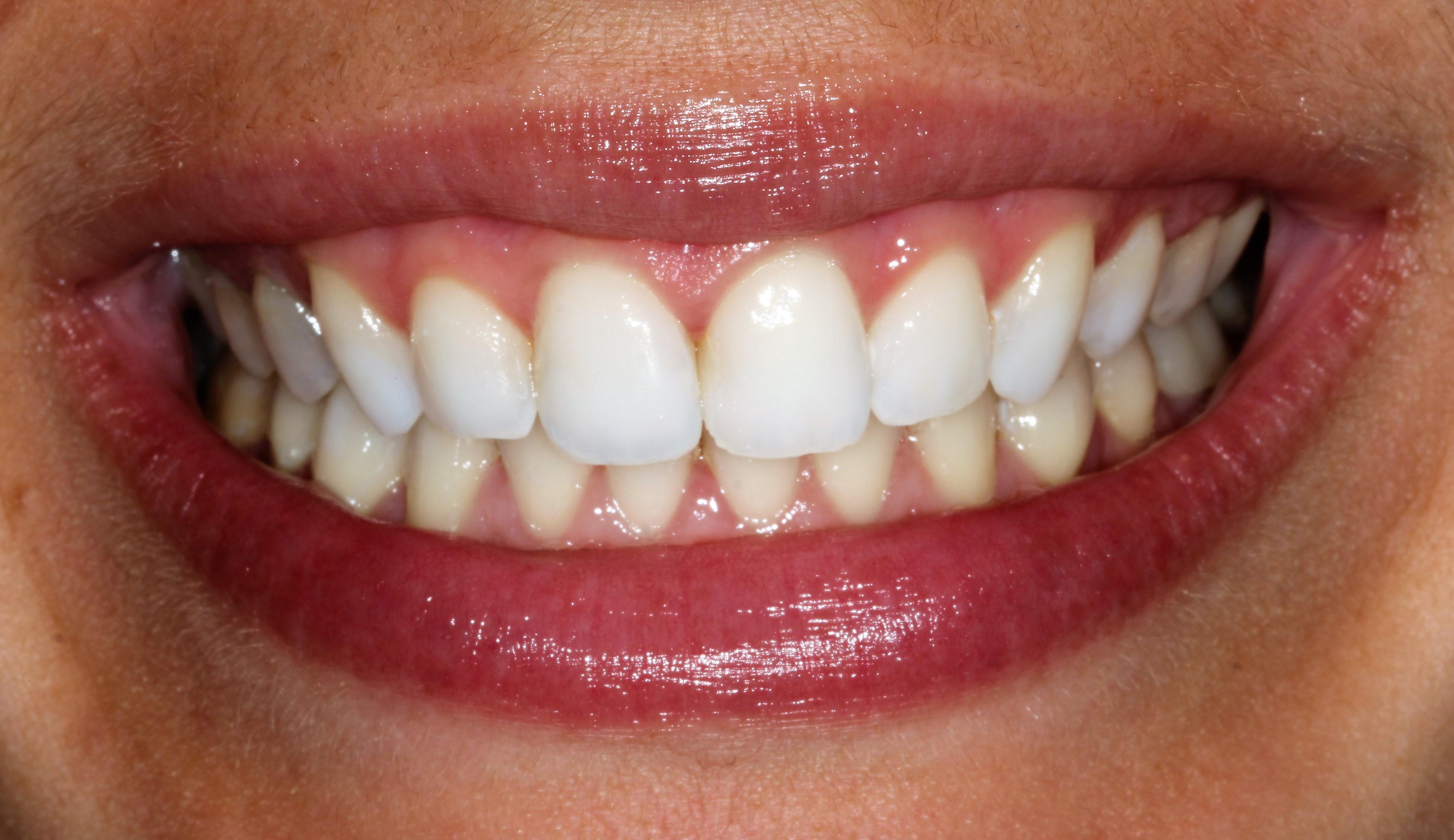 Lijepi bijeli osmijeh pacijentice nakon ispravljanja zuba u Ordinaciji Vuić