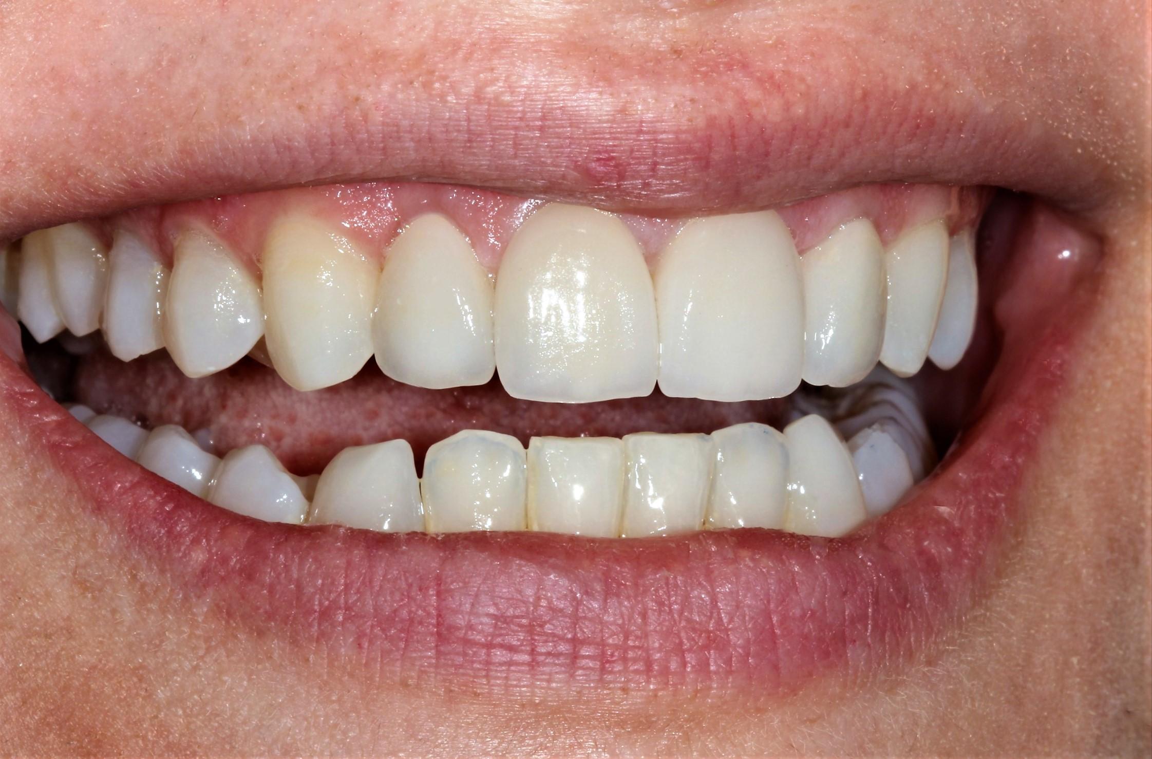 Smile design estetika osmijeha keramičke ljuskice